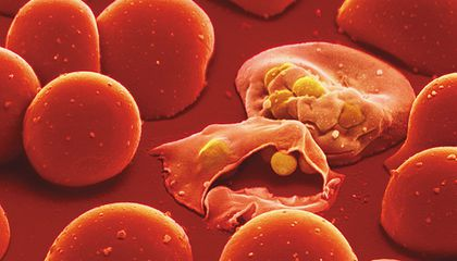 THe Malaria Parasite within a Red Blood Cell...